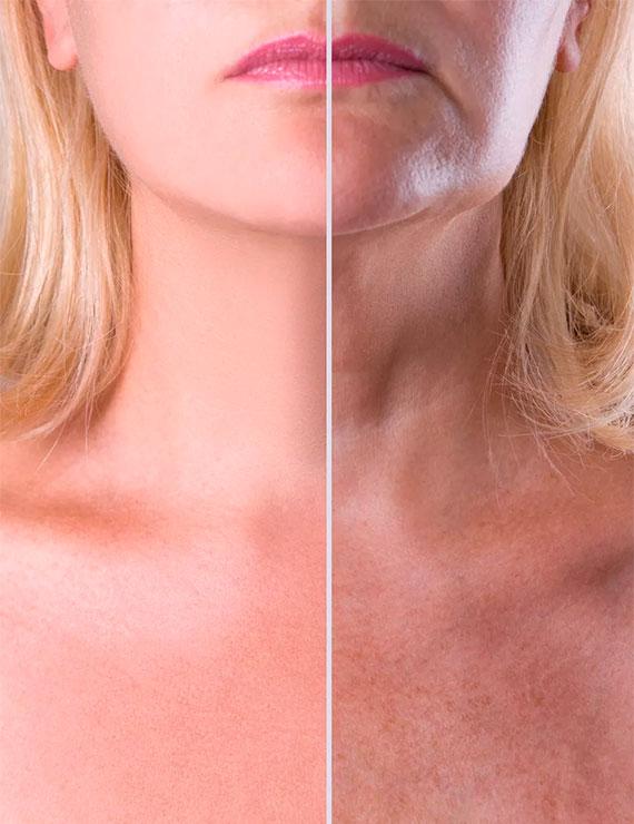 extracto de placenta rejuvenece la piel