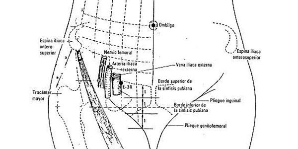 ilustración localización punto 30